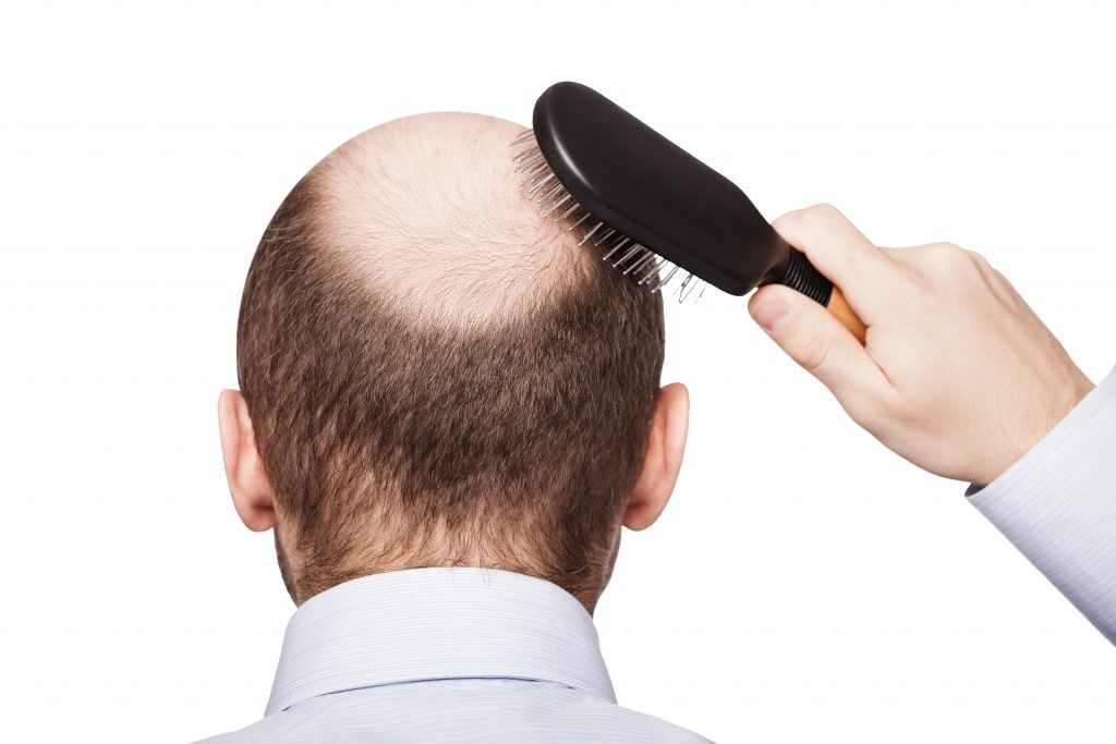 man brushing his balding head